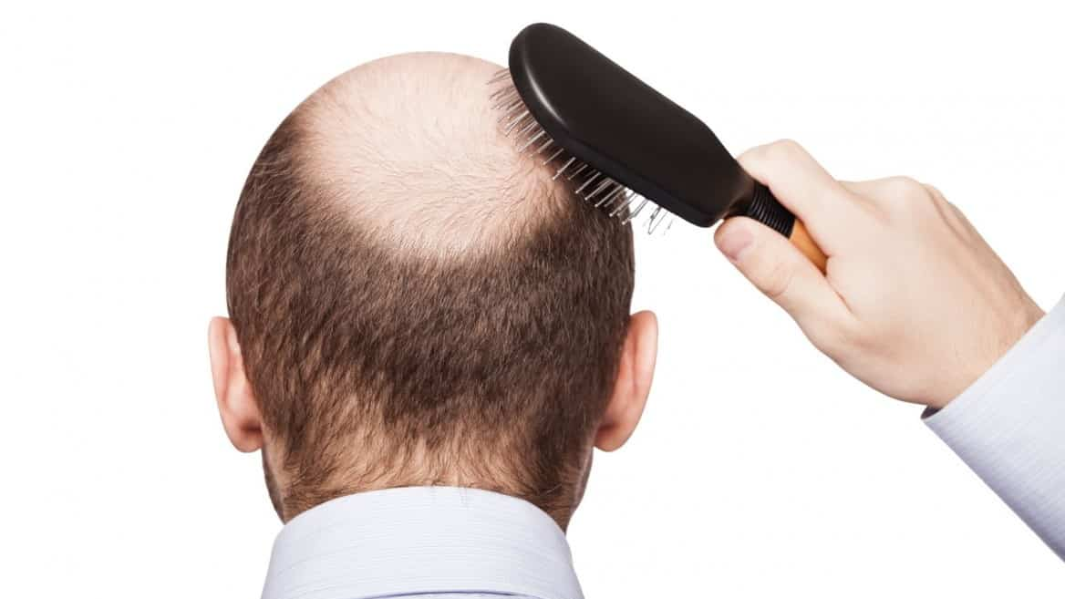 What Are Hair Fibers and How They Solve Baldness